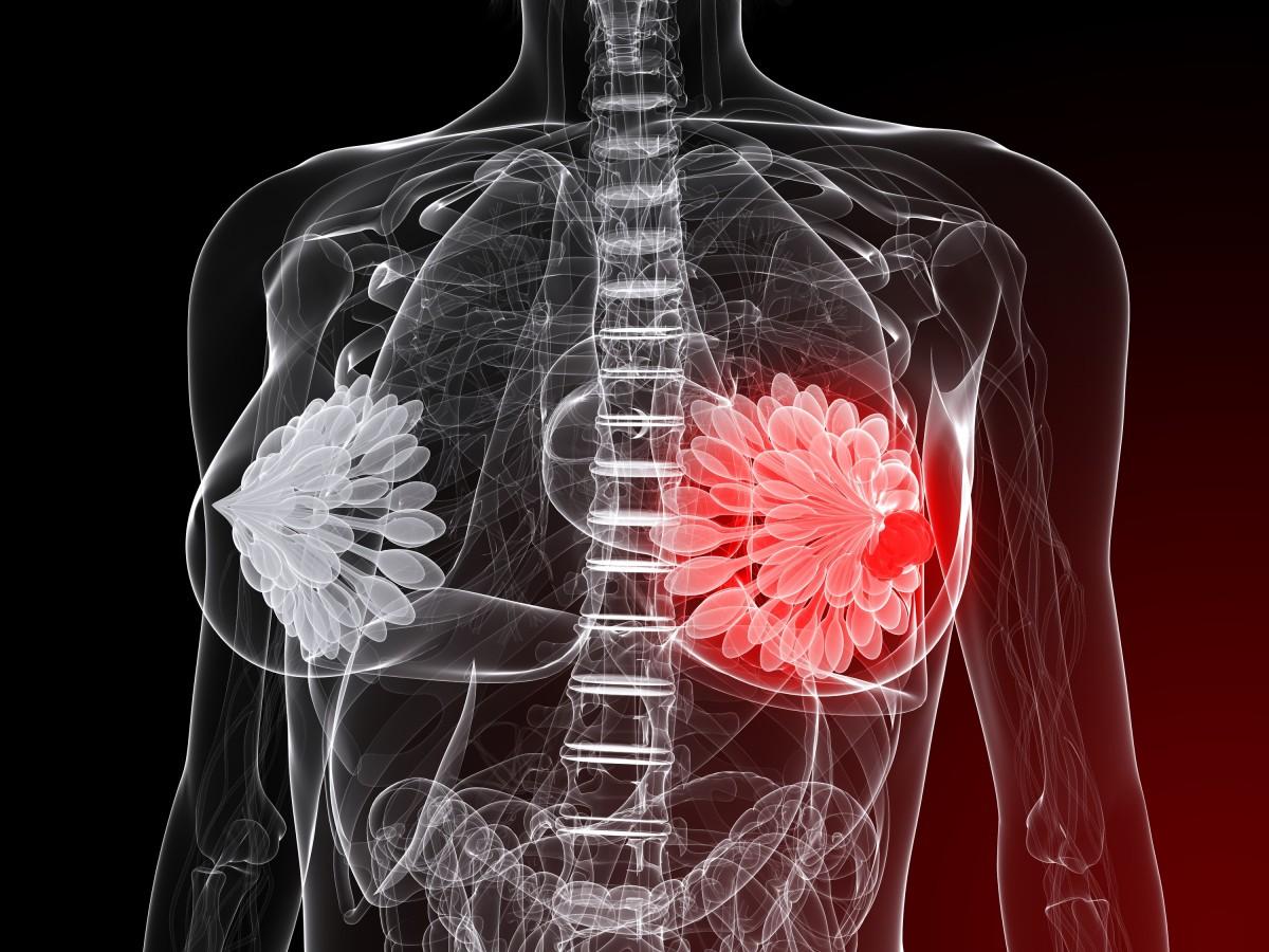 Nové dôkazy, ako zápaly spôsobujú rakovinu a ako na ne