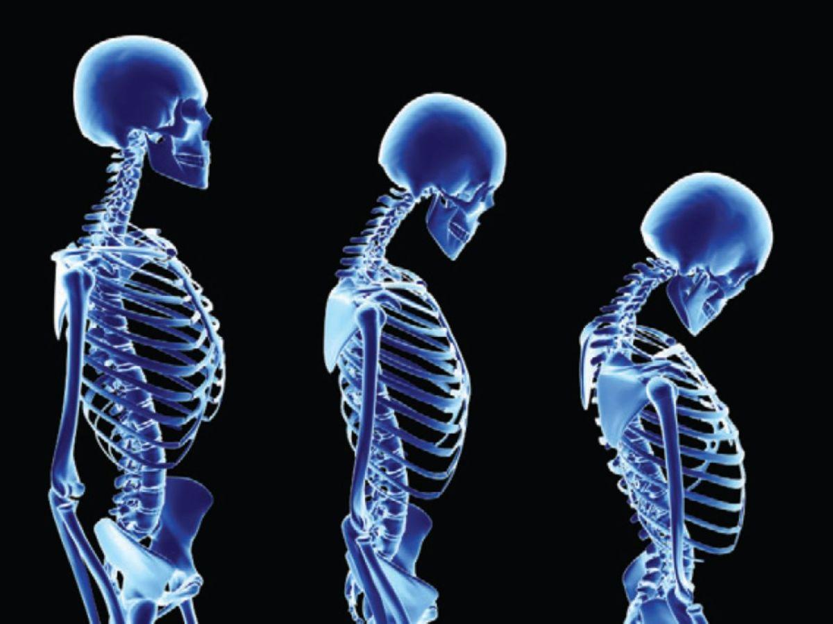 Základné fakty o tajomnom vitamíne K2, a prečo jeho nedostatok spôsobuje utrpenie